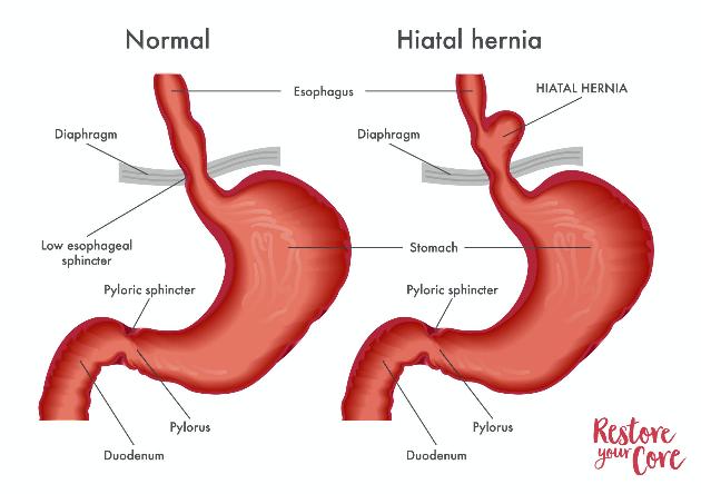 types of hernia