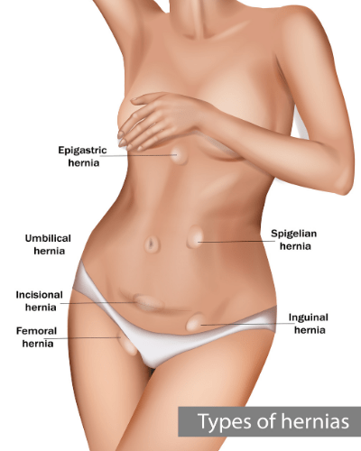 Types of hernias