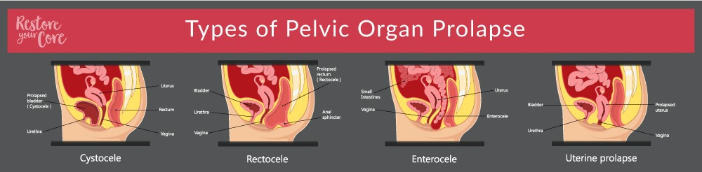 the types of pelvic organ prolapse RYC