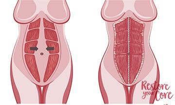Diastasis Recti Surgery Procedure Overview Will You Need It Ryc