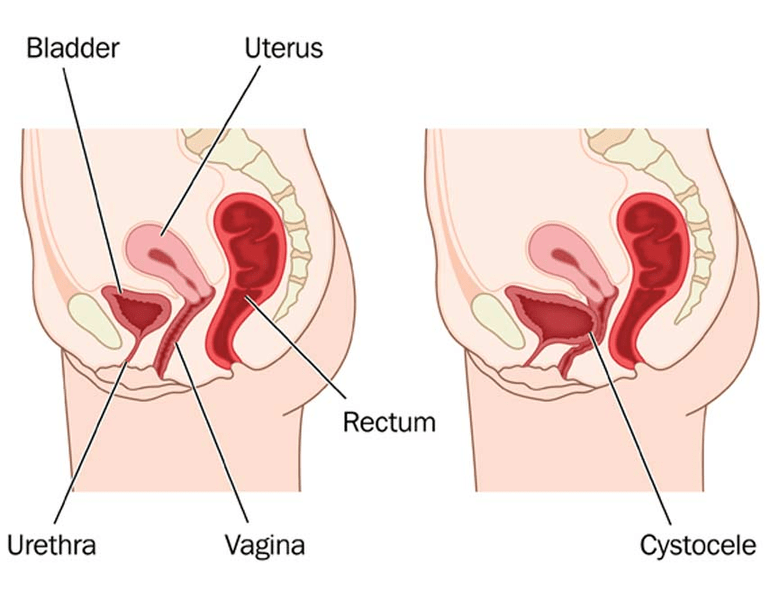 What does cystocele look like